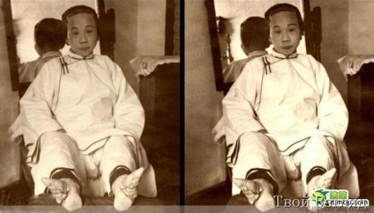 Китайские ножки-лотосы (шокирующие фото) | Твой Взгляд Стопы Рисунок